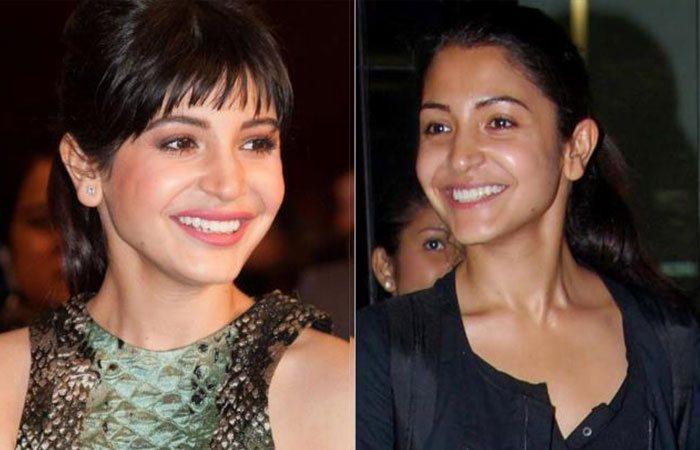 Anushka Sharma - Bollywood Actresses Without Makeup