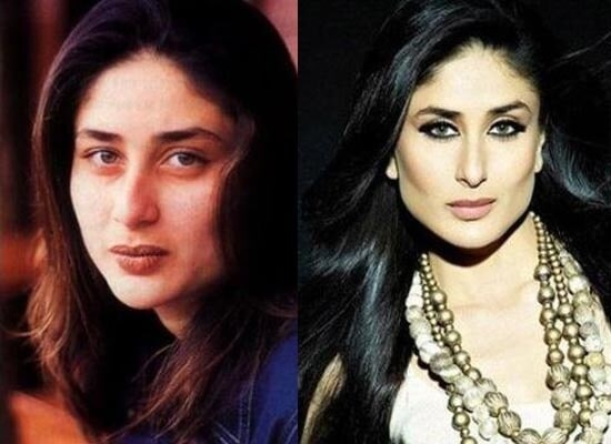 You wont believe how these 5 bollywood divas look after their disastrous botox
